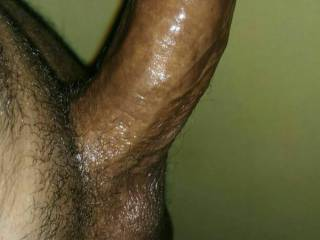 My dick is standing unnecessary ....can u please tell me why