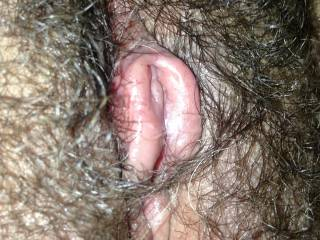 One very swollen, suctioned, pumped up clit and hood