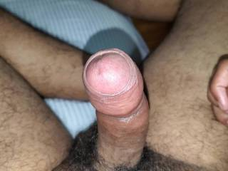 My foreskin being pulled back by itself
