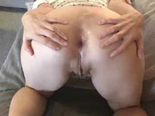 Gaping butthole