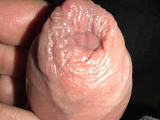 Playing with my pumped up Cock. Love my big foreskin