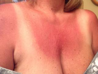 sorry you got so burned, but let me put some protein cream all over to help